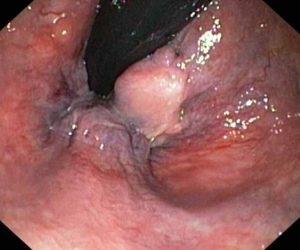 hemoroidy 2